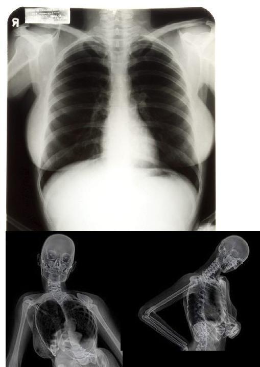 radiografías de Marilyn Monroe
